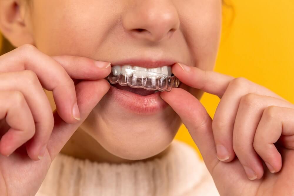Co to ortodonta?
